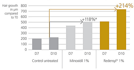 Redensyl Hair Regrowth Serum Outperformed Minoxidil By 90